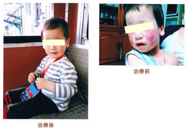 子供 アレルギー治療